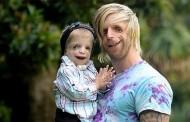 TCS Sendromlu Çocuklara Kendini Sevdiren Adam